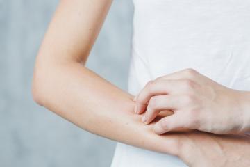 Naravno proti atopijskemu dermatitisu