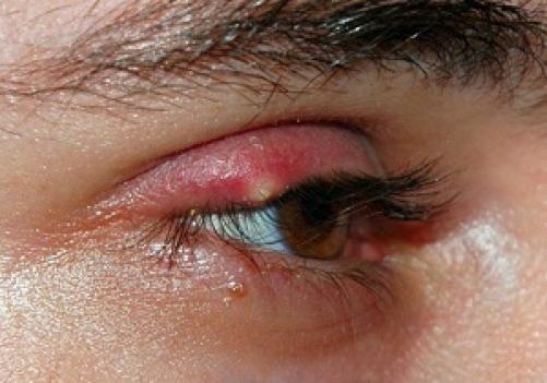 Domači nasveti proti ječmenu na očesu