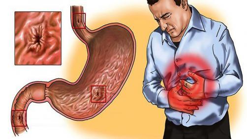 Was ist Gastritis und was verursacht Gastritis?