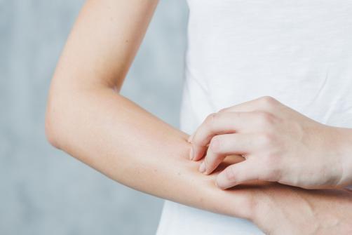 Prirodnim putem protiv atopijskog dermatitisa