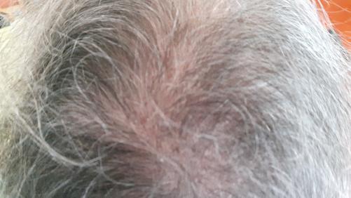 Zaustavite izpadanje las na naraven način