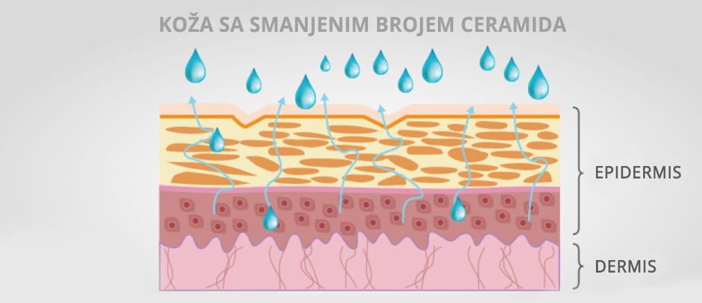 Koža sa smanjenim brojem ceramida